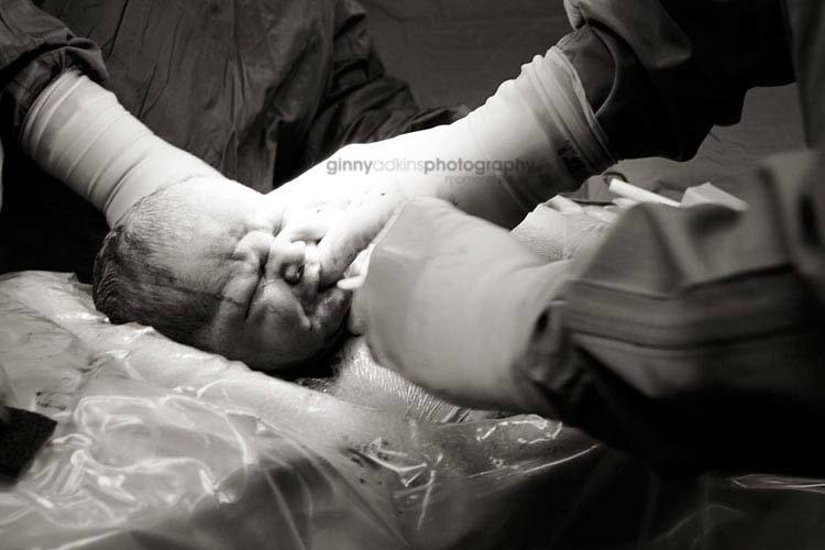 birth photography moment of birth photograph birth of baby