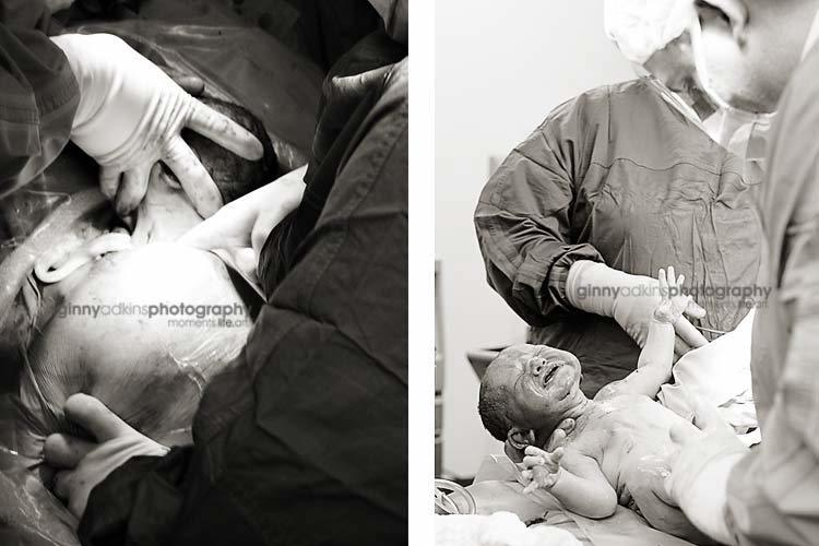 photograph during c section professional birth photographer
