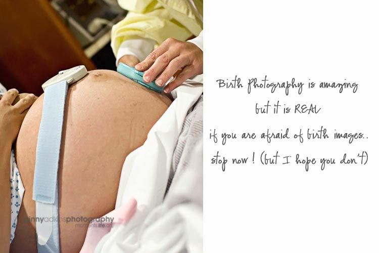 labor delivery pregnant mother about to give birth fetal monitor editorial photography